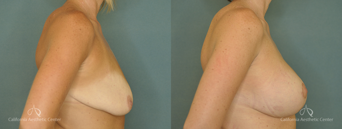 Breast Lift Before and After Photos Patient 1A