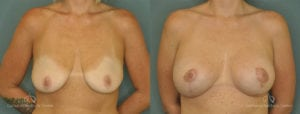 Breast Lift Before and After Photos Patient 1C