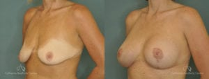 Breast Lift Before and After Photos Patient 1D