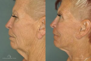 Face Lift Before and After Photos Patient 1C