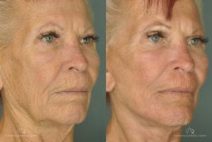Face Lift Before and After Photos Patient 1D