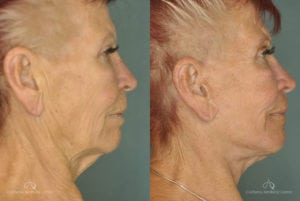 Face Lift Before and After Photos Patient 1E
