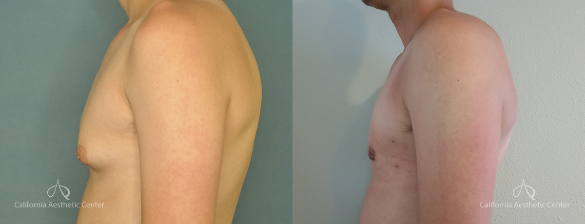 Gynecomastia Before and After Photos Patient 2A