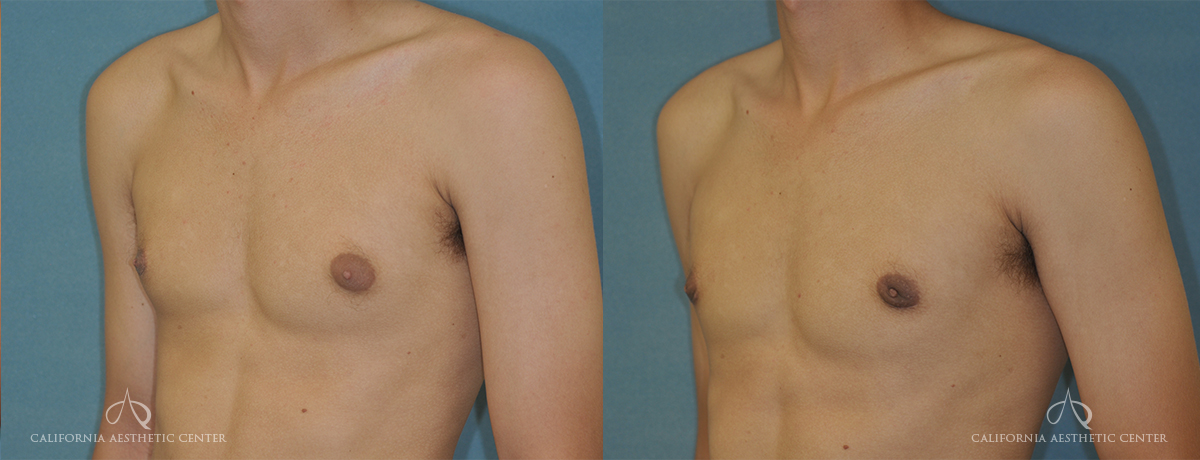 Patient 3 Gynecomastia Before and After Left Oblique Chest View