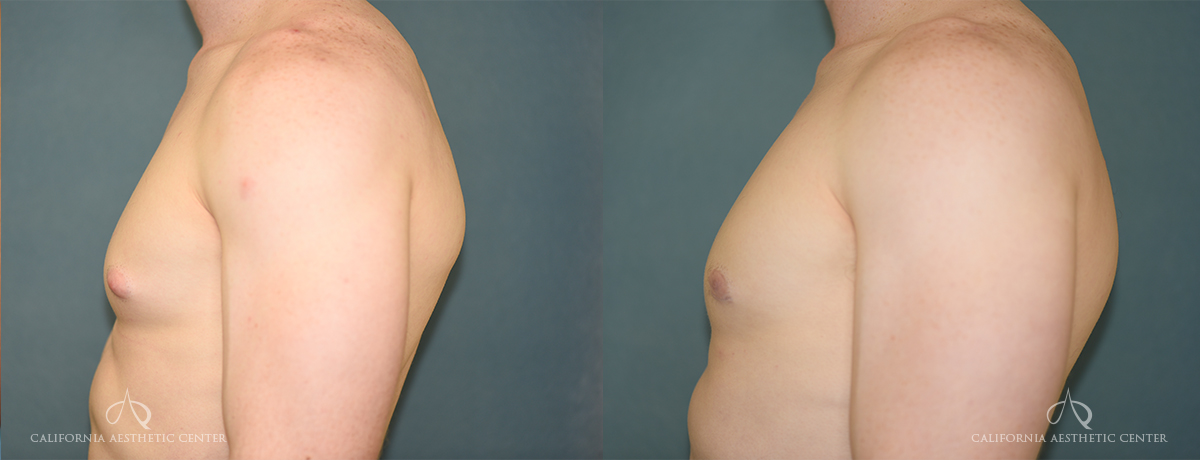 Patient 4 Gynecomastia Before and After Left Side Chest View