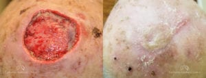 Skin Graft Before and After Photos Patient 1A