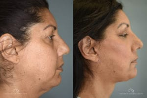 Patient 2 Face Lift Before and After Right Side View