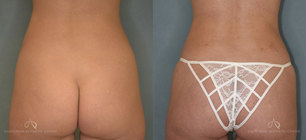 Patient 1 Liposuction Before and After Back View